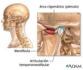 Disfuncion temporomandibular